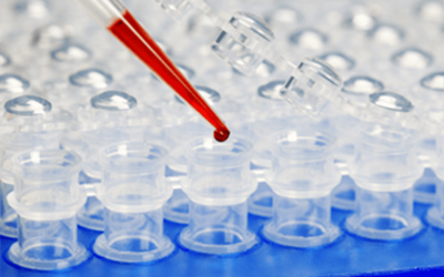 Buying a new qPCR machine? Here's what you should know first