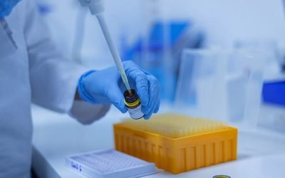 RT-qPCR diagnostic tests for SARS-CoV-2 – an overview
